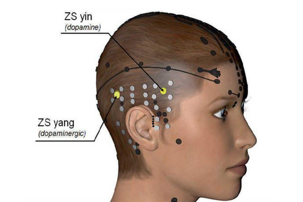 Geförderte Studie - Therapie des Morbus Parkinson mit Schädelakupunktur - Schädel